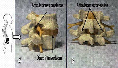 COLUMNA CENTRAL - dolor lumbar