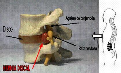 El dolor del cuello y más abajo a la espalda
